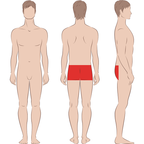 Male Buttocks Including Anal Laser Hair Removal