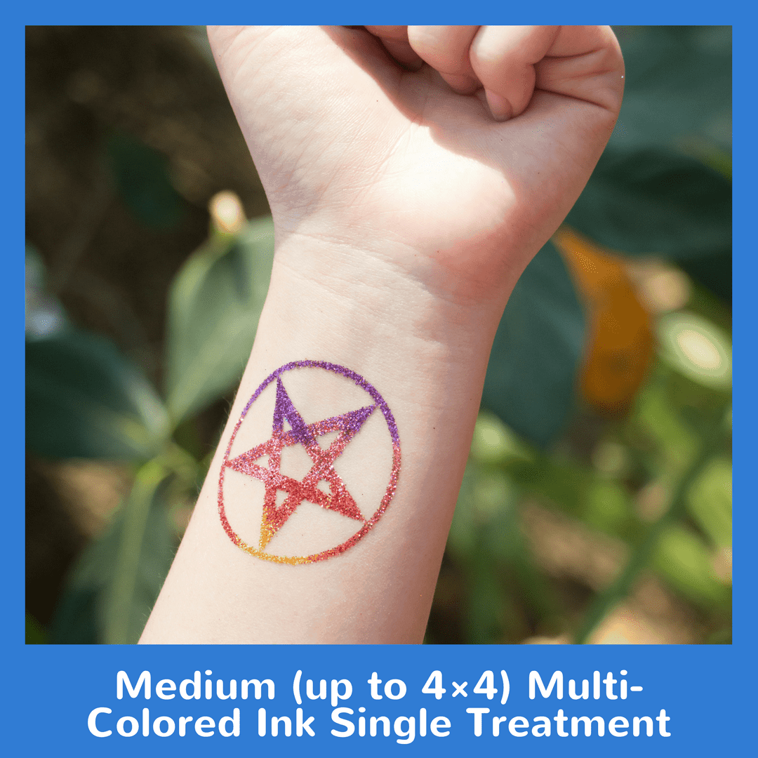 Medium Up To 4x4 Multi Colored Ink Single Treatment