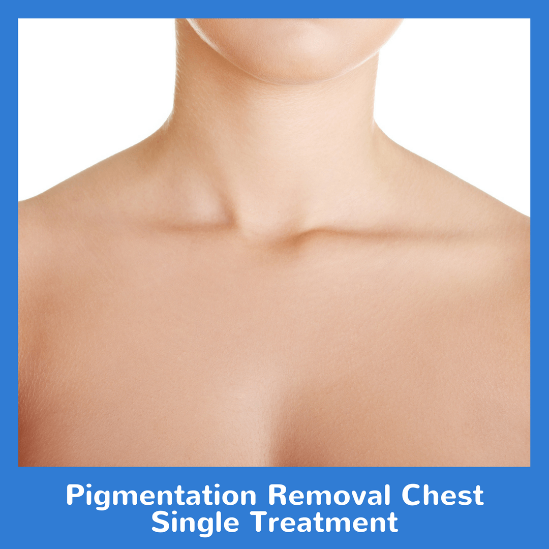 Pigmentation Removal Chest Single Treatment