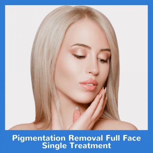Pigmentation Removal Full Face Single Treatment