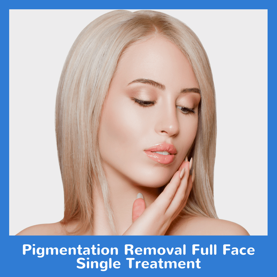 Pigmentation Removal Full Face Single Treatment