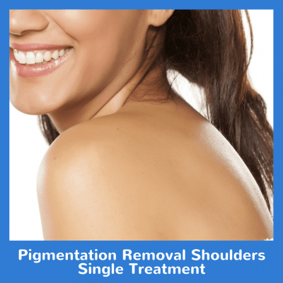 Pigmentation Removal Shoulders Single Treatment