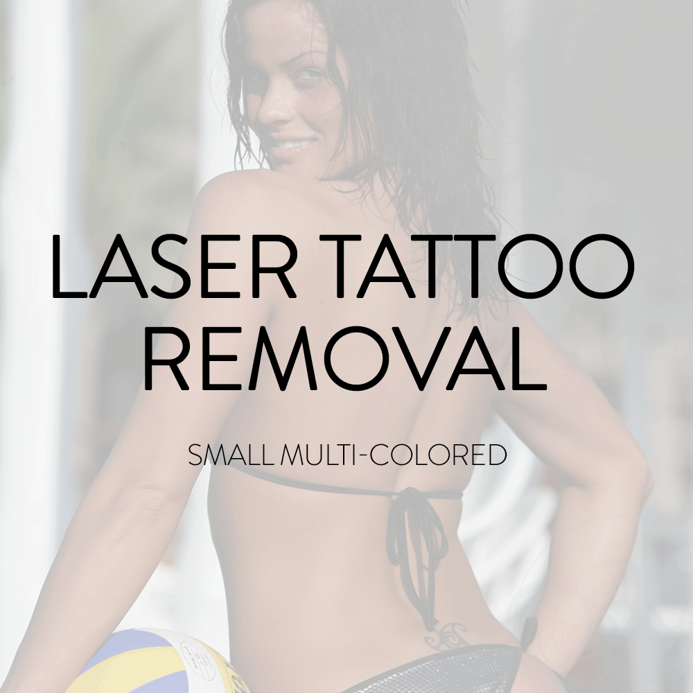 Tattoo Removal Packages , Shop For Services , Laser Tattoo Removal ...