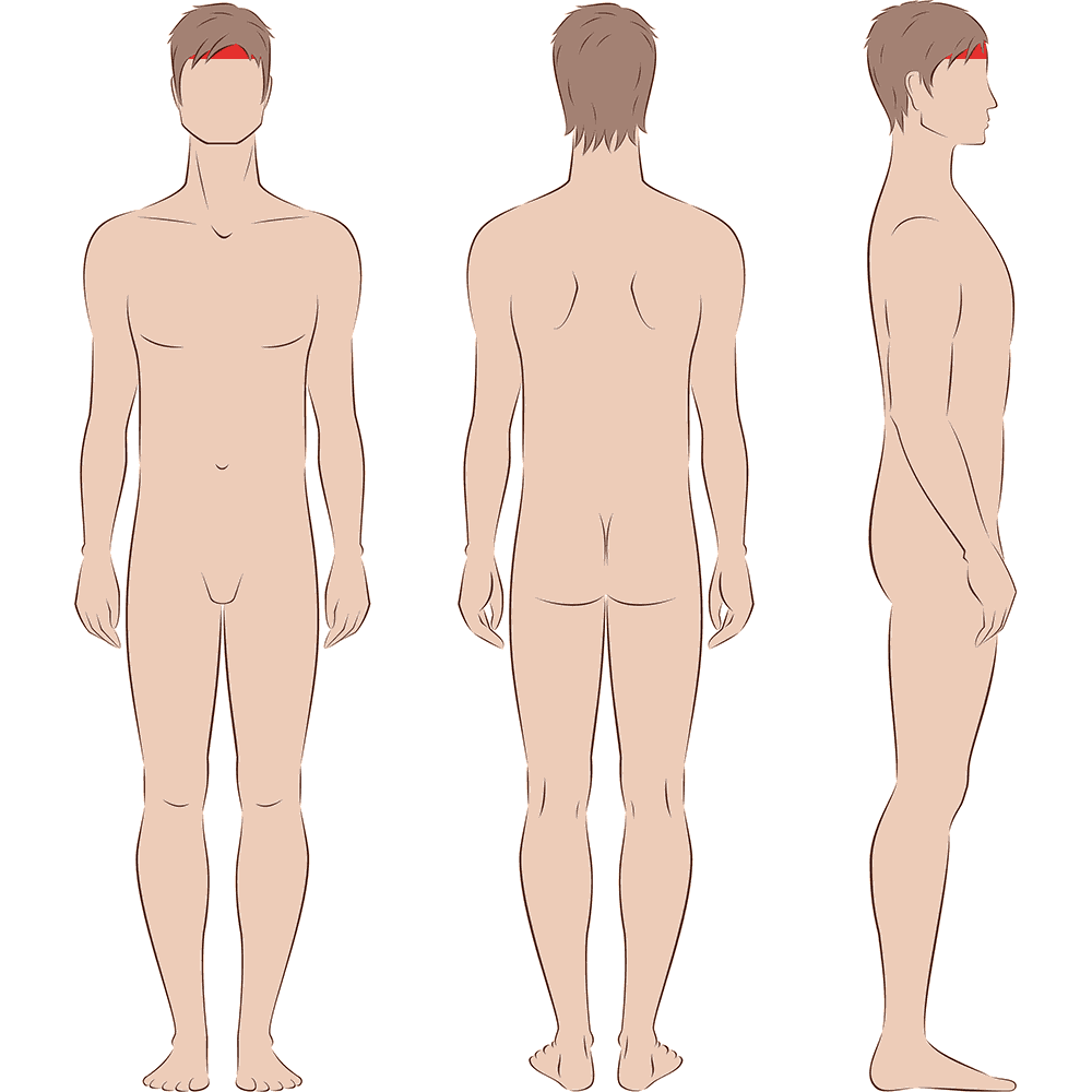 Male Widows Peak Laser Hair Removal