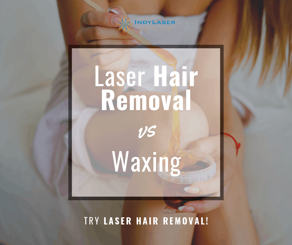 Indy Laser laser hair treatment vs waxing