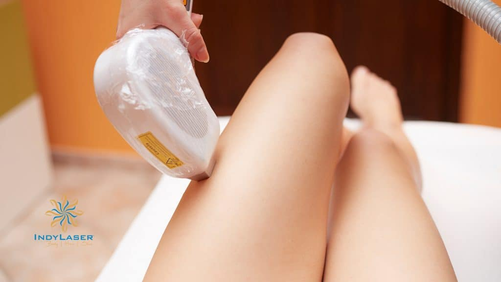 Is_Laser_Hair_Removal_Permanent_-_How_does_Laser_Hair_Removal_Work