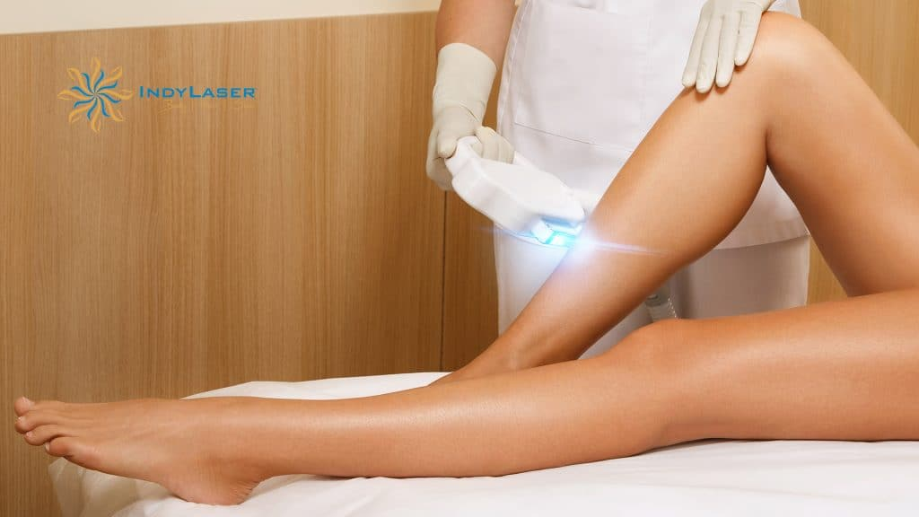 Laser_Treatment_for_Permanent_Hair_Removal_for_Women