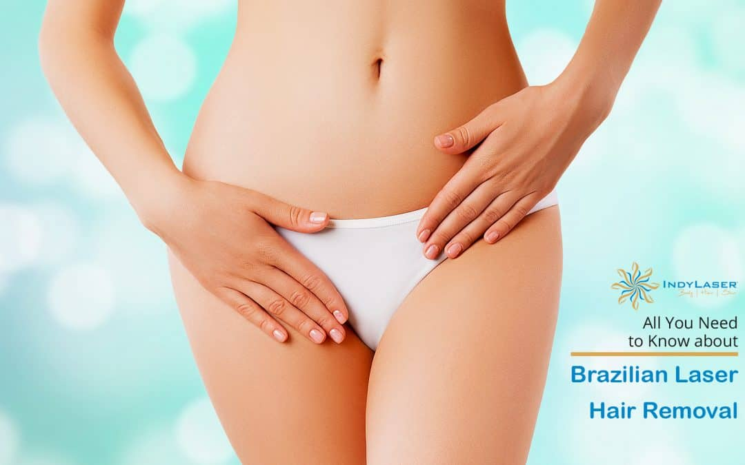 All You Need to Know about Brazilian Laser Hair Removal