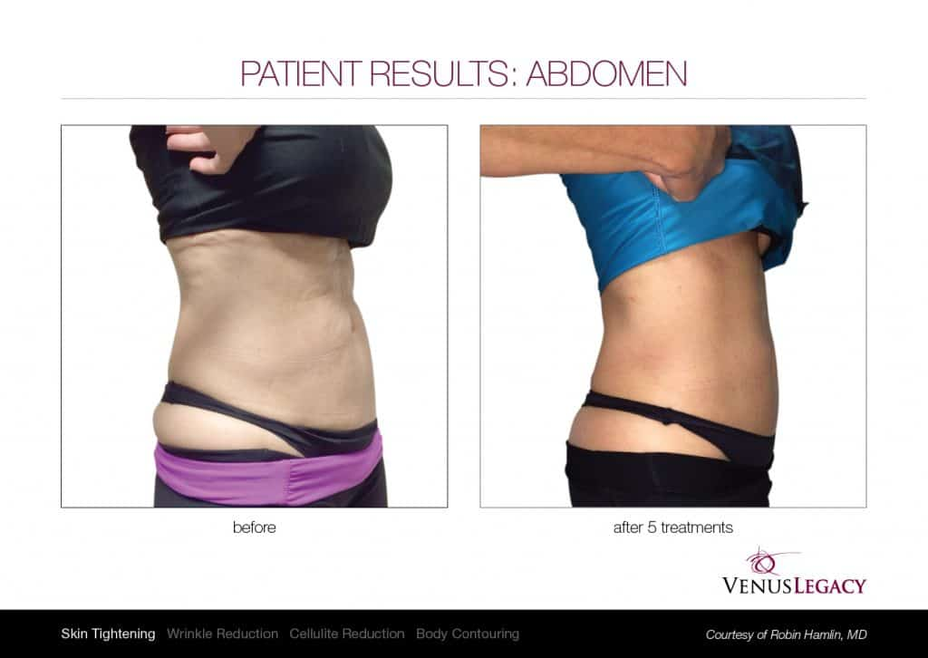 venus abdomen 001